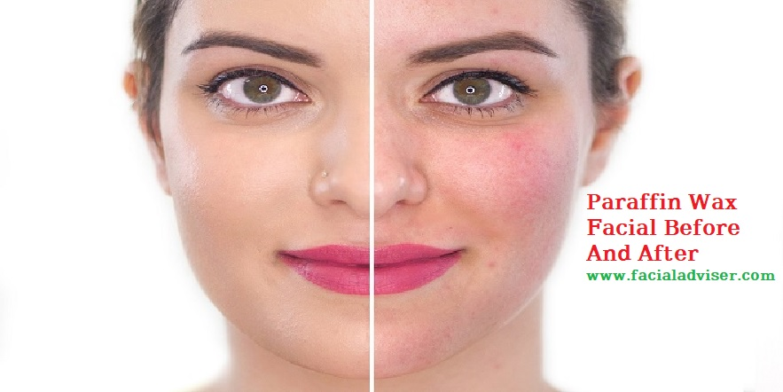 parafin facial before and after