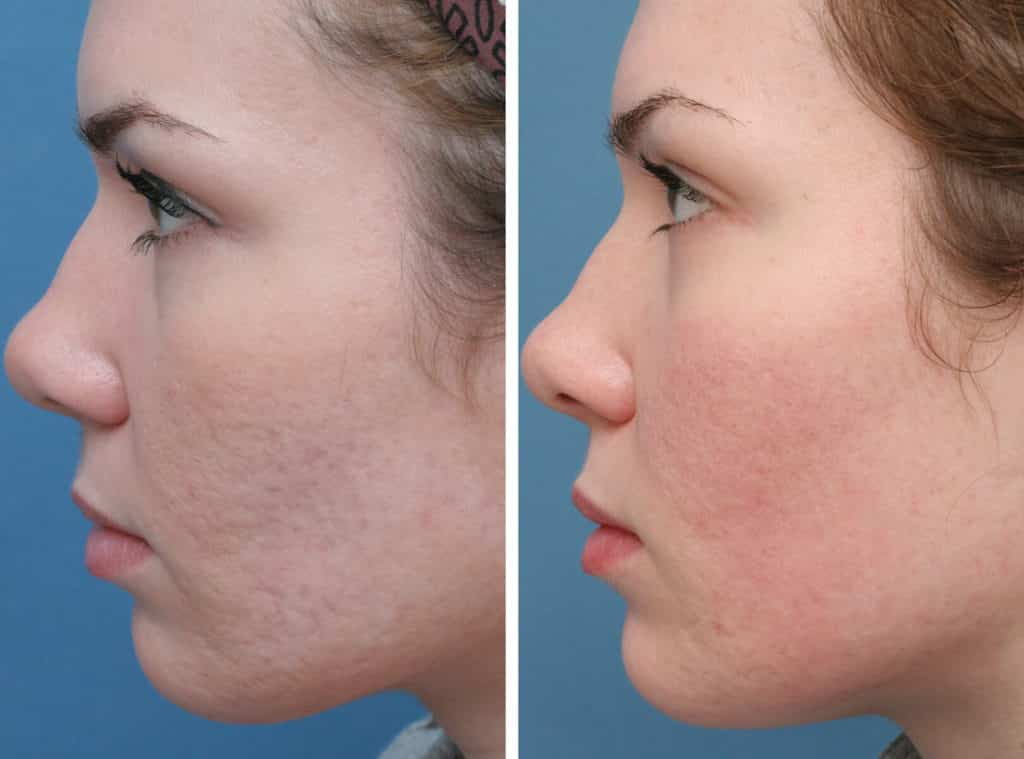 Microdermabrasion After 2 months