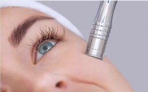 micodermabrasion for acne