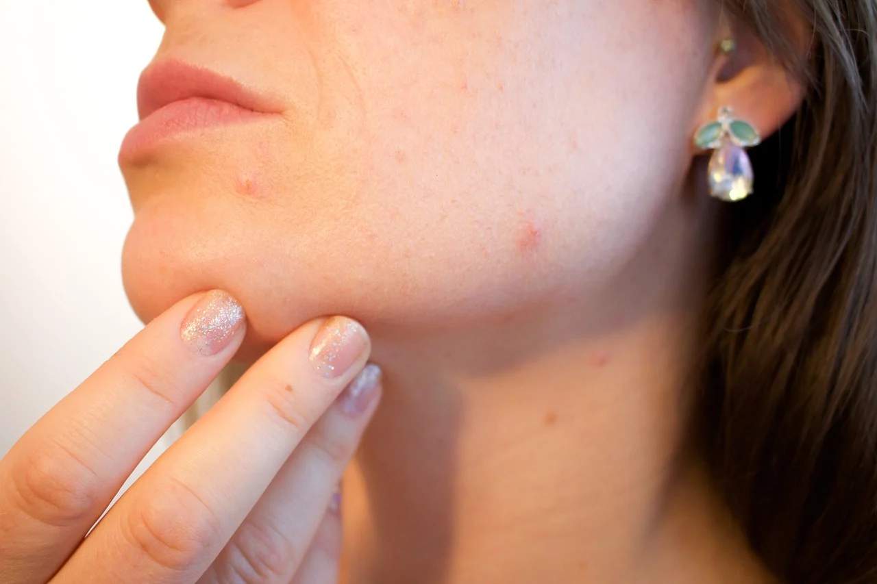 removing acne and darkspots