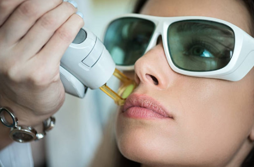 Is at home laser hair removal safe