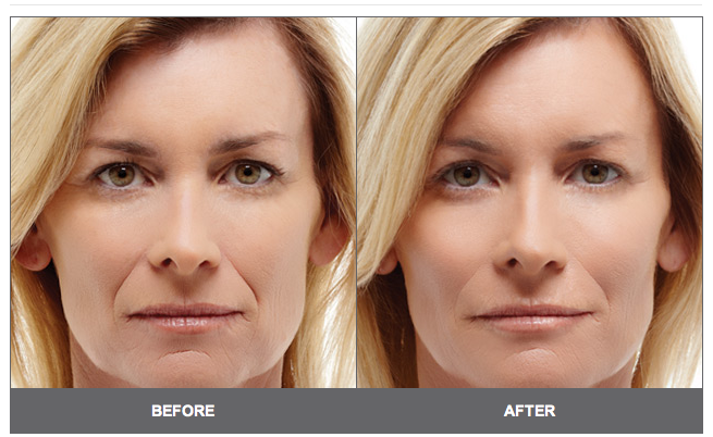 Acupuncture Facial Rejuvenation Before And After