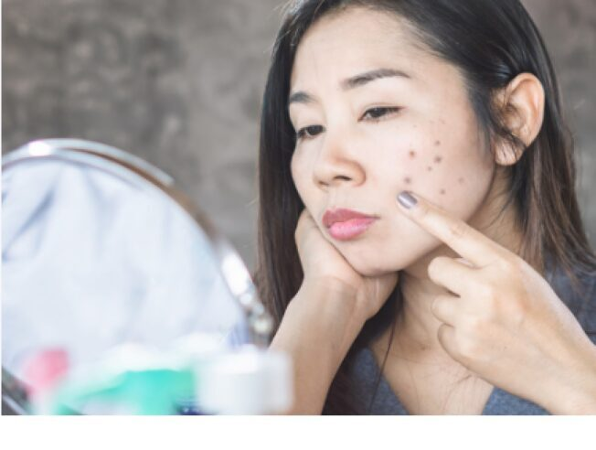 What To Eat To Remove Dark Spots On Your Face
